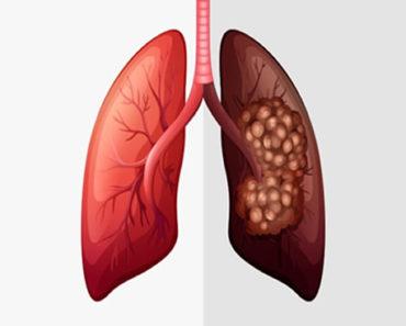 Câncer-de-Pulmão