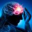 Epilepsia-Eplepsia