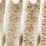 Osteoporose nos ossos