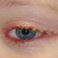 Blefarite Olhos