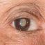 Catarata - Olho