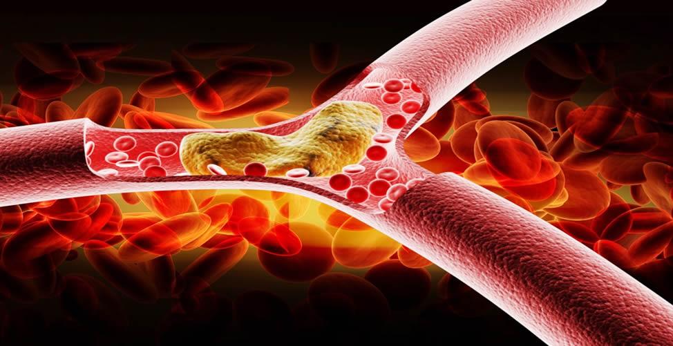 Remédio Para Colesterol