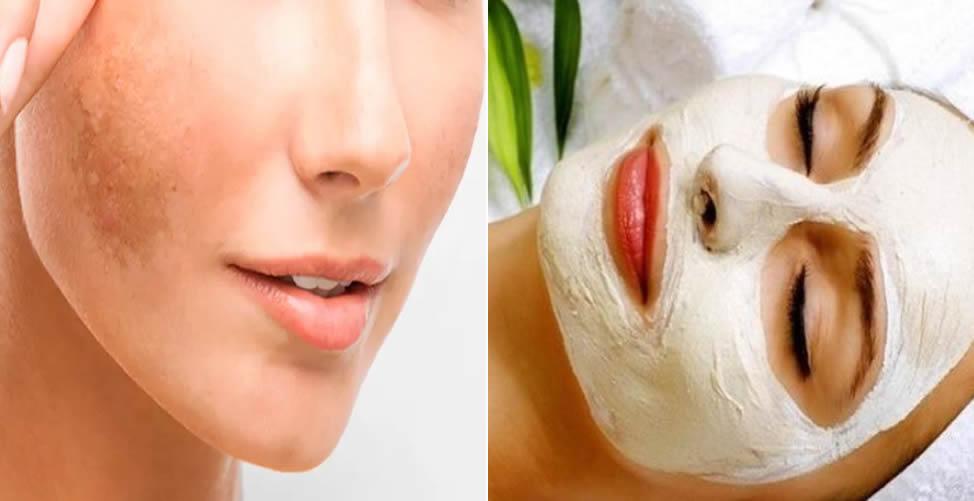 Tratamento Caseiro Para Melasma - Máscara de Argila branca